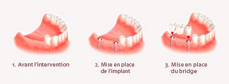 Bridge sur implant